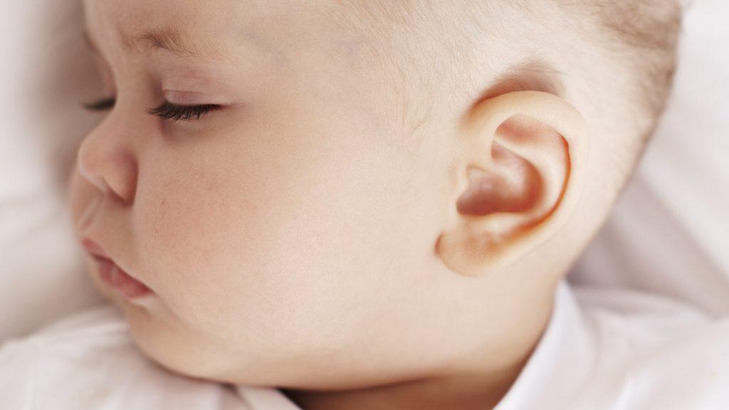 Tratamento de Deformidades Auriculares em Recém Nascidos